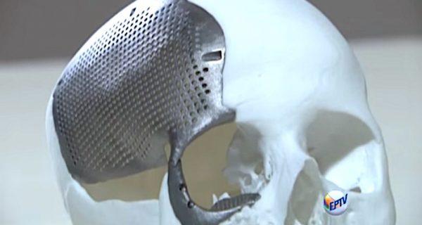 Titanio para la impresión 3D: con un poco de cobre, la aleación perfecta